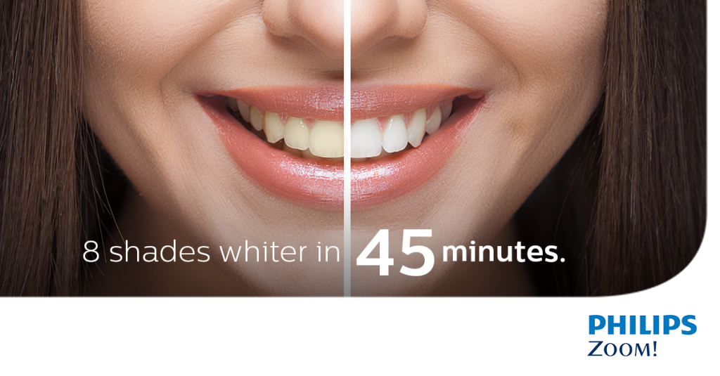 Teeth Whitening For The New Year 212 Smiling