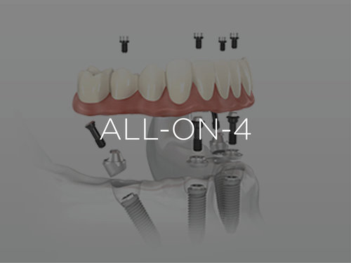 All-On-Four or All-on-4 Dental Implant
