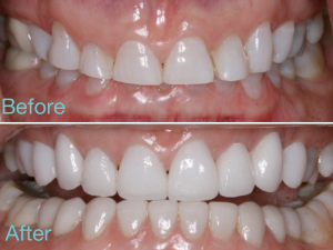 Before and After Veneers - 212 Smilng