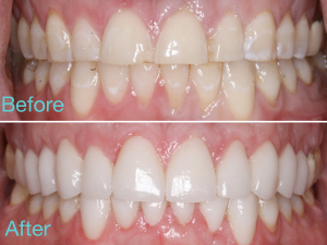 Before and After Veneers NYC