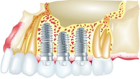 Teeth in an hour dental implant procedure