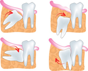 causes for wisdom teeth removal