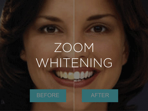 Zoom Whitening Cosmetic Dentistry