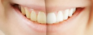 teeth-whitening-procedure