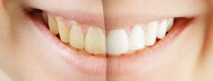 teeth-whitening-procedure