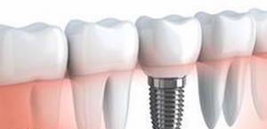 dental implants nyc