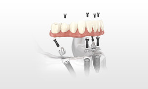 dental-implants-placing