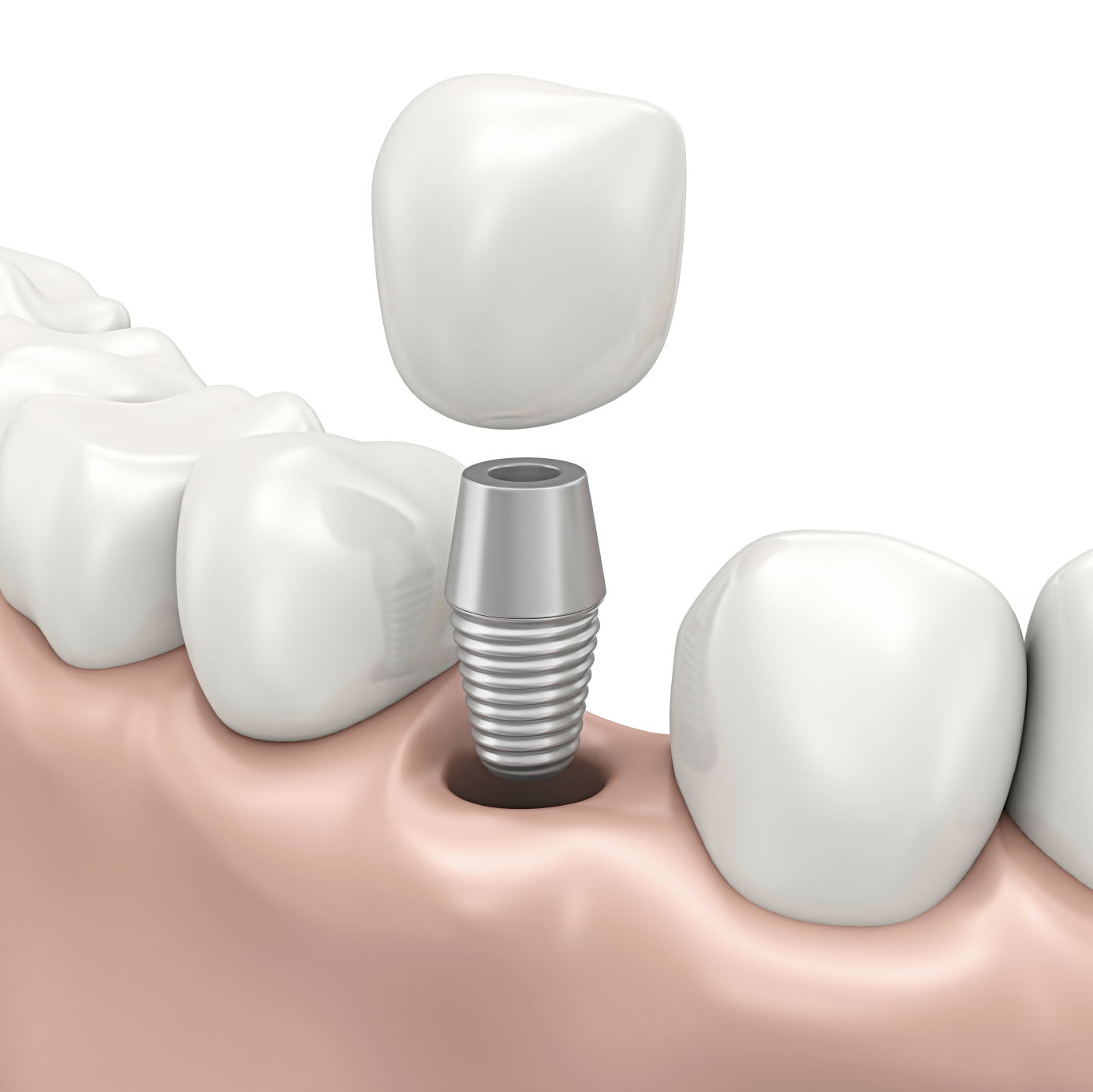 same day dental implants at 212 Smiling