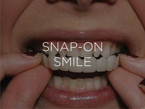 Snap on smile at 212 Smiling