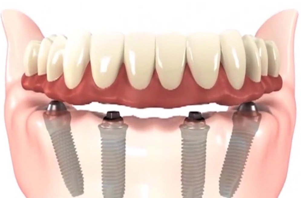 Dental Implant Cost in NYC - Implant Dentist - 212 Smiling