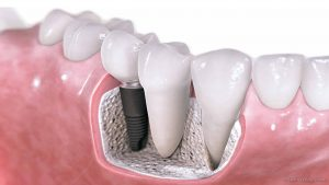Single Tooth Dental Implant Cost