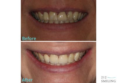 All Ceramic Crowns Female