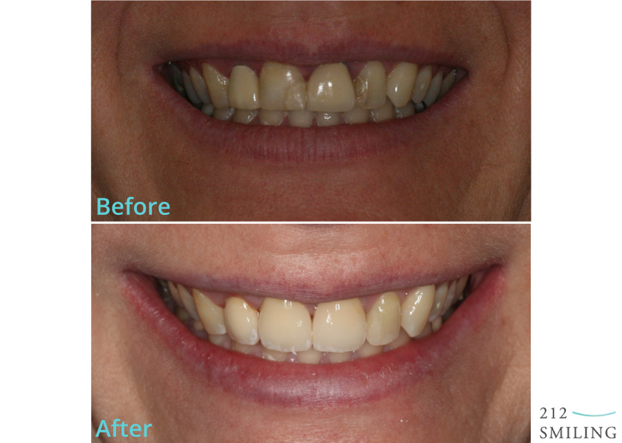 All-Ceramic-Crowns-Female-Before-and-After-3