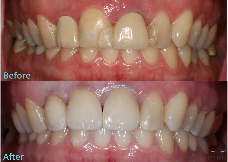 All-Ceramic-Crowns-Female-Before-and-After-4