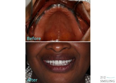 All on Four Ceramic Crowns Female Before and After