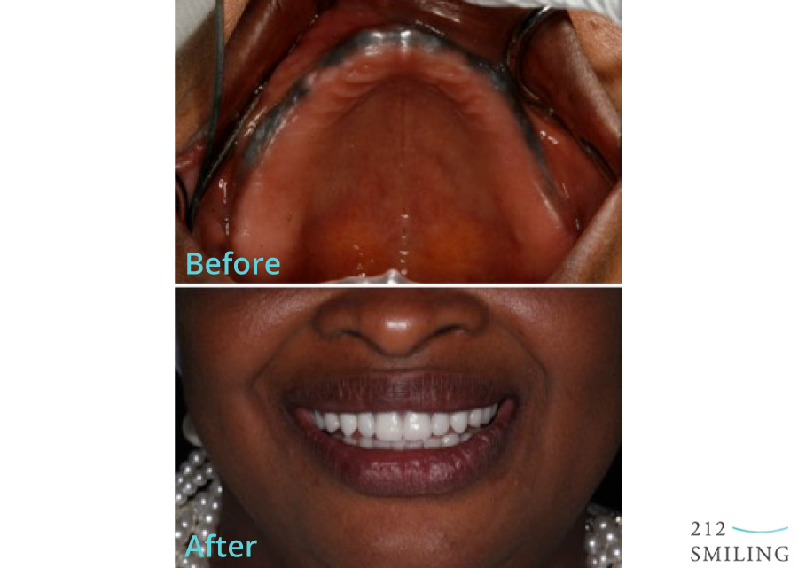 All-on-Four-Ceramic-Crowns-Female-Before-and-After