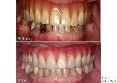Dental Implants Female Before and After