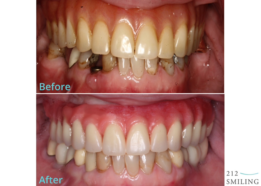 Dental-Implants-Female-Before-and-After-1