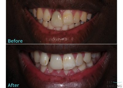 Dental Implants NYC Before and After