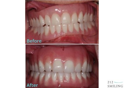 Dentures Female Before and After