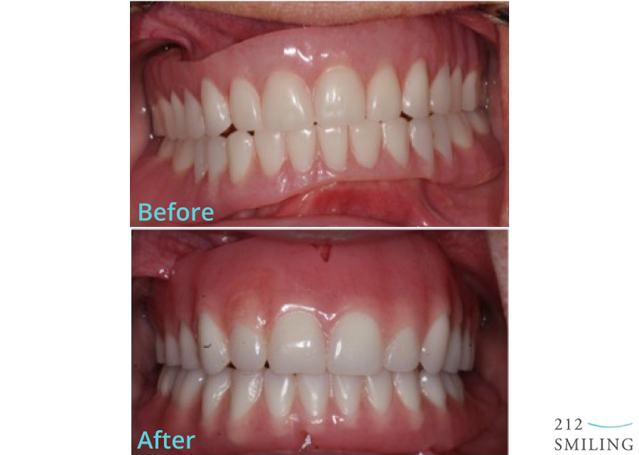 Dentures-Female-Before-and-After-2