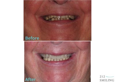 Dentures Male Before and After