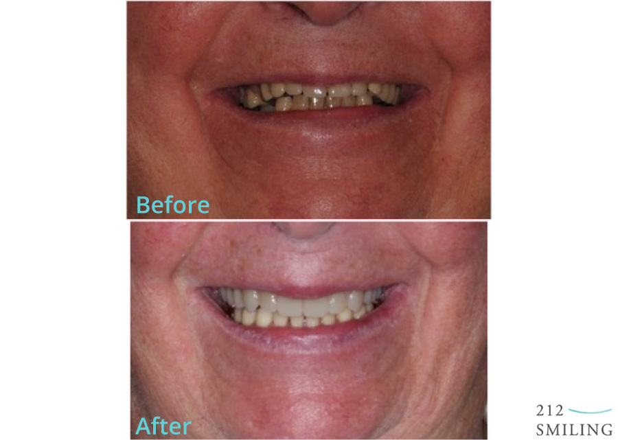 Dentures-Male-Before-and-After-2
