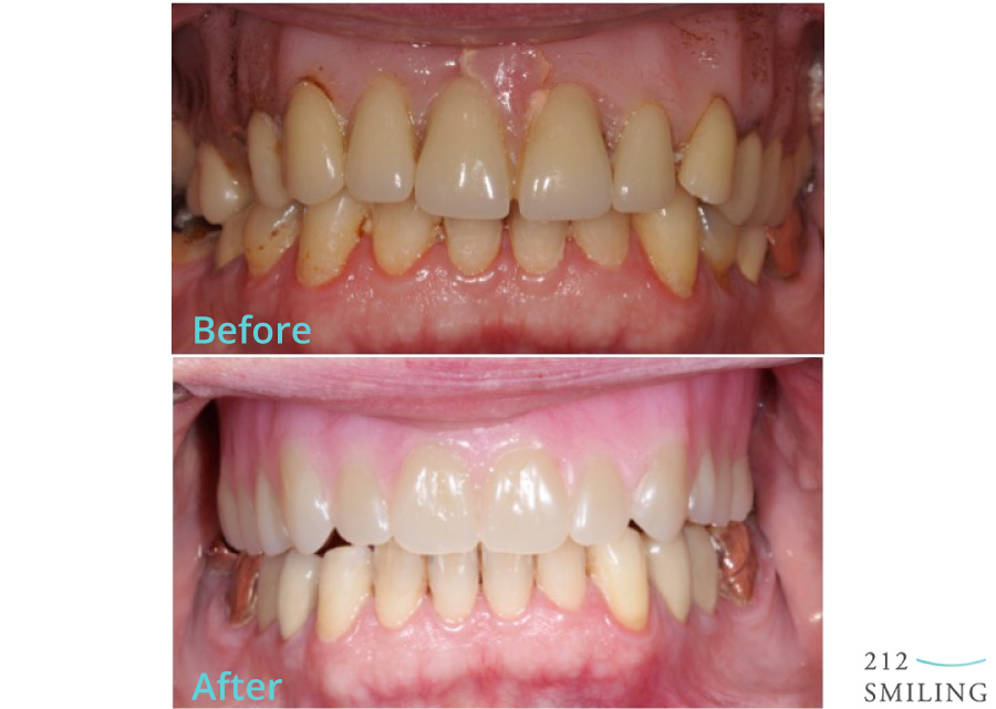 Dentures-Male-Before-and-After
