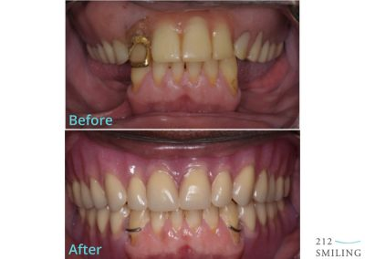 Dentures and Partial Dentures Male Before and After