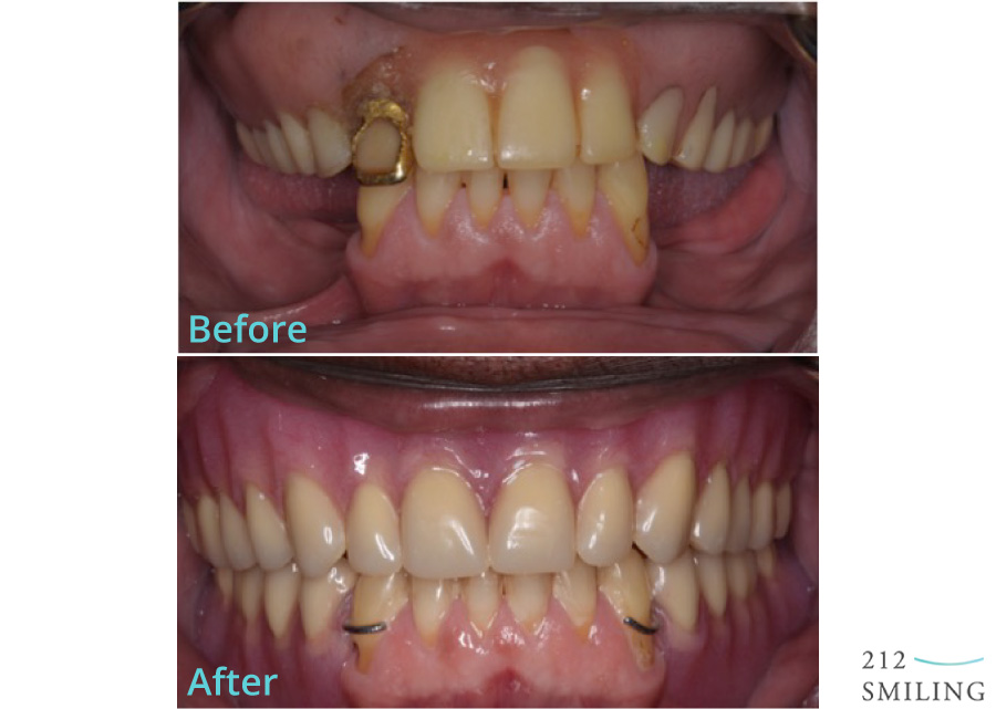 Dentures-and-Partial-Dentures-Male-Before-and-After
