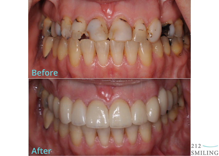 Female-All-Ceramic-Crowns-Before-and-After-5