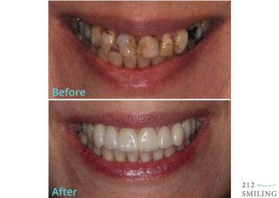 Female All Ceramic Crowns Before and After