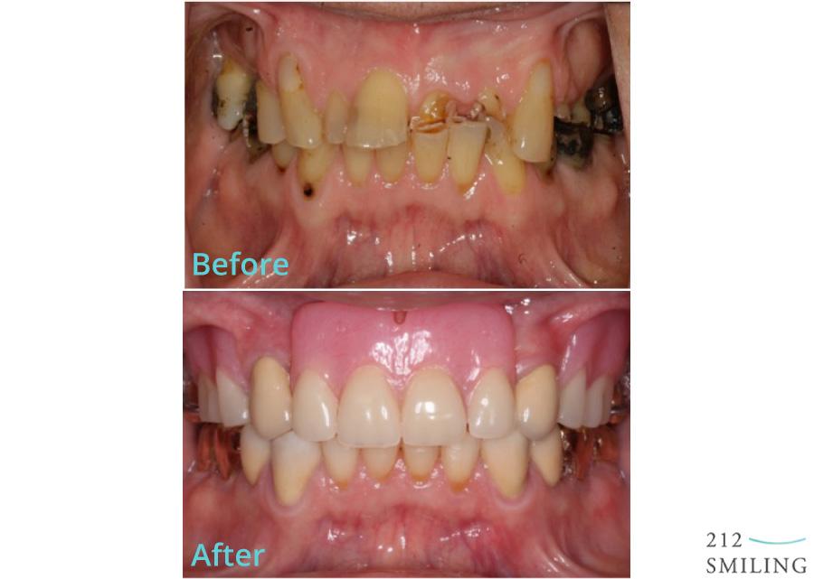 Full-Mouth-Rehabilitation-Male-2