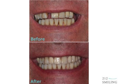 Male Dental Implants Before and After
