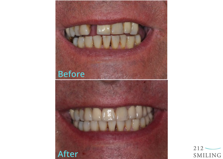 Male-Dental-Implants-Before-and-After