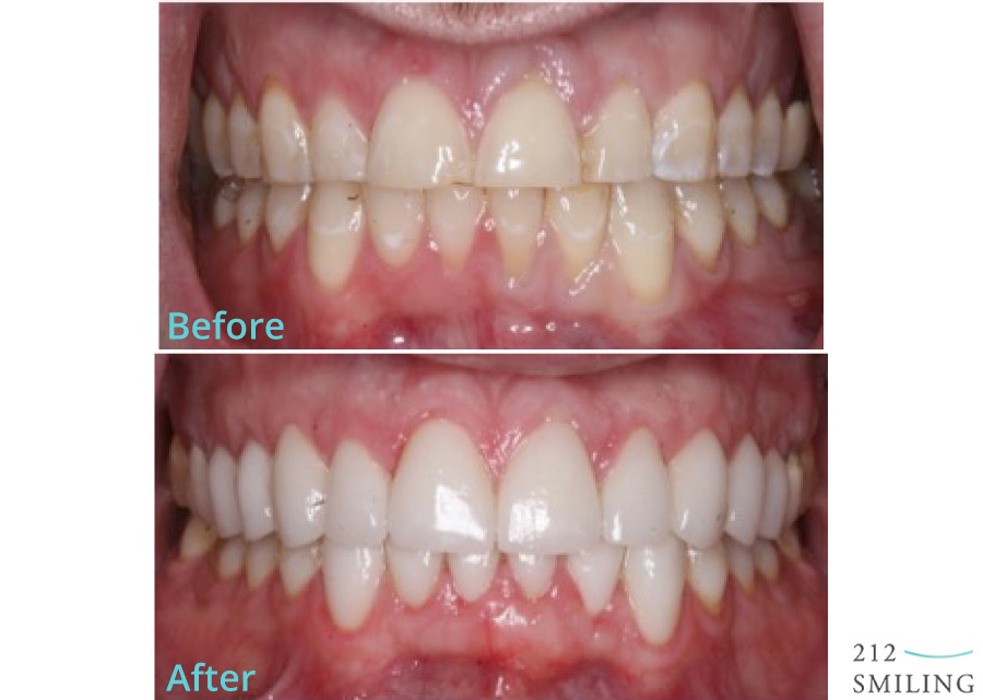 Veneers-Before-and-After-Male-2
