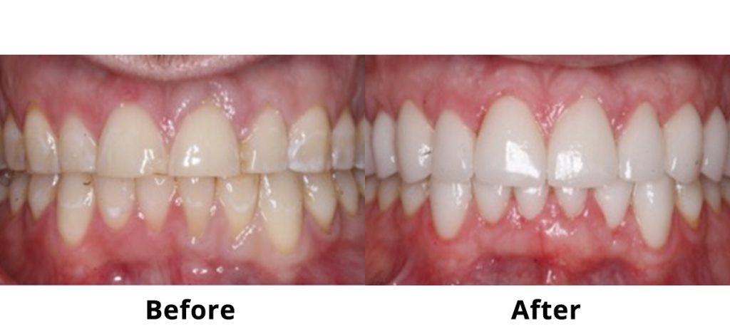 Porcelain Dental Veneers Before and After Male