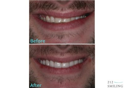Veneers Before and After Male