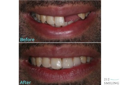 Dental Implants Before and After Male