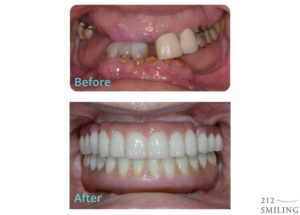 Female Teeth in a Day Before and After