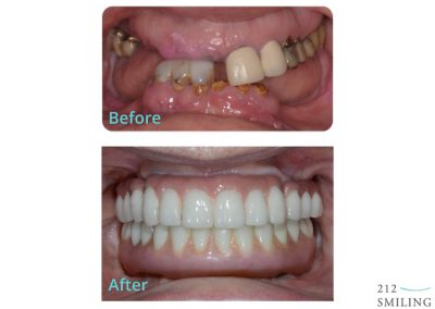 Teeth in a Day Before and After Photos