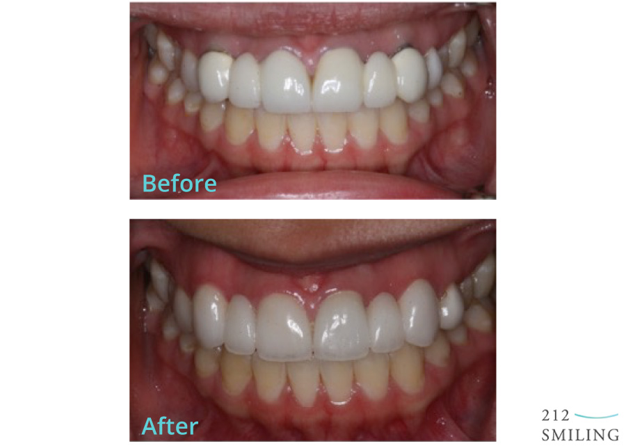 Before and After All Ceramic Bridge