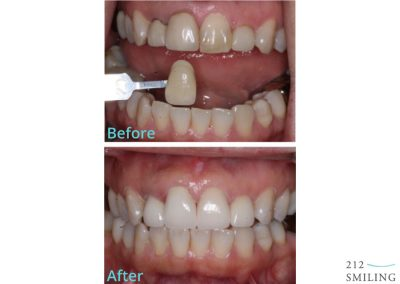 Before and After All Ceramic Crowns