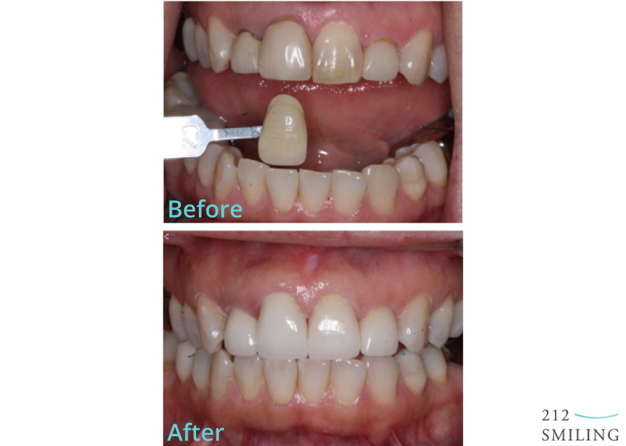 Ceramic-Crowns-Before-and-After