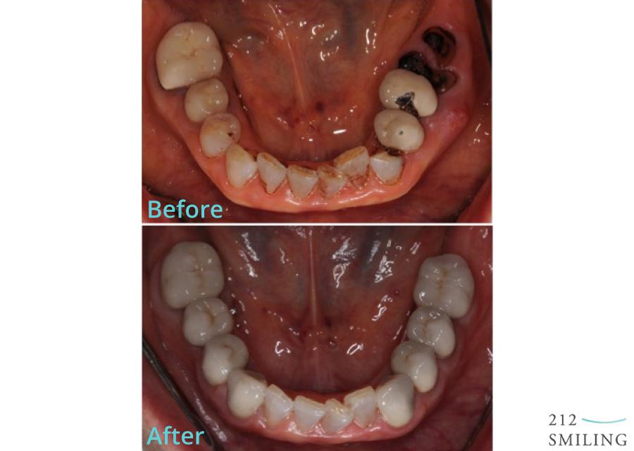 Female-Full-Mouth-Rehabilitation-2