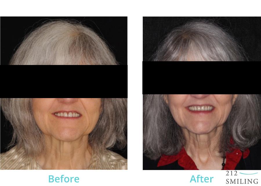 Female-Full-Mouth-Rehabilitation-3