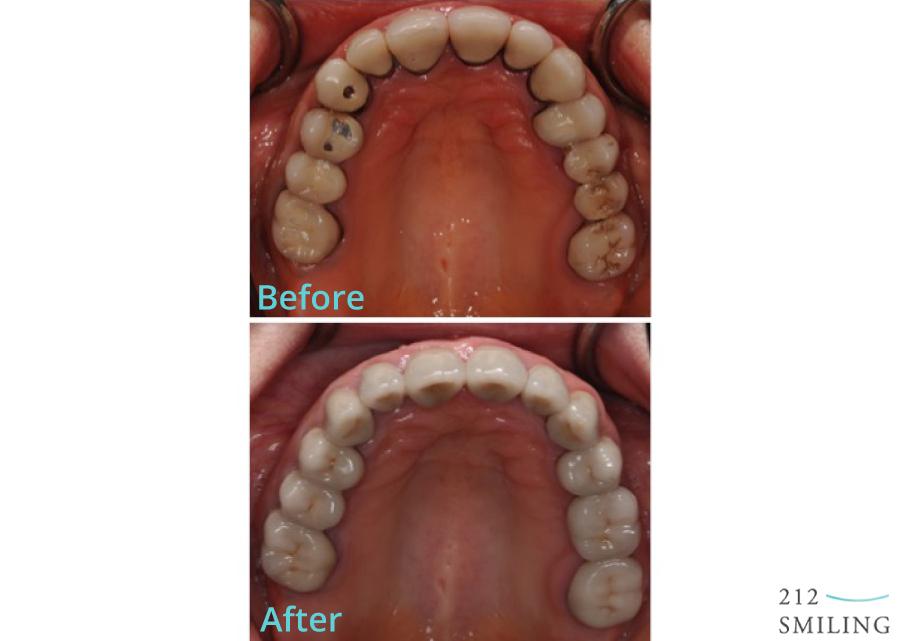 Female-Full-Mouth-Rehabilitation