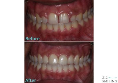 Female Ceramic Veneers Before and After NYC