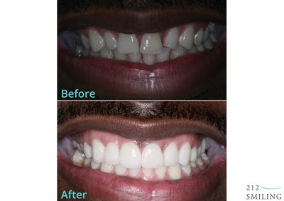 Male Veneers Before and After NYC