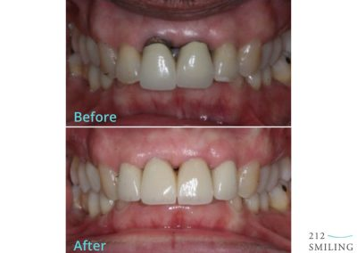NYC Dental Implant Before and After